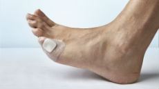 Chronic wounds, eg. diabetic foot ulcers