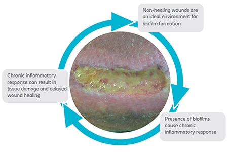 WSC-wound-infections-and-biofilm